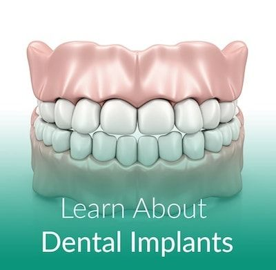 Image of teeth representing dental implants.