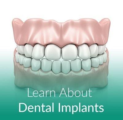 Image of teeth representing dental implants.